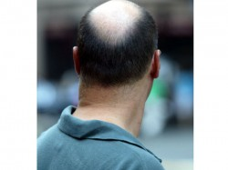 Rahul Gandhi Faces Bald Attack From Bald Men In Nasik