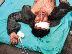 Youth Who Slapped Mamata Banerjee S Nephew Charged With Attempt To Murder