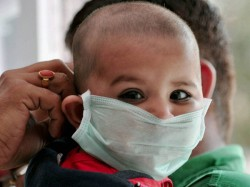 Swine Flu Outbreak Claims Over 300 Lives In Ukraine