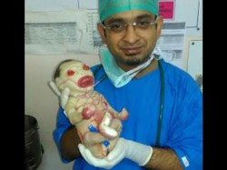 India S First Harlequin Baby Born In A Farmer S Family In Nagpur