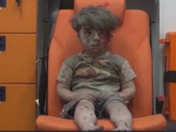 The Bloodied Face A Child Survivor Sums Up The Horror Syria