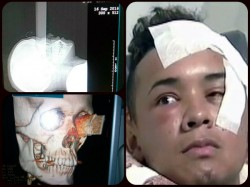Man Stabbed Through Eye Socket With Knife That Pierced His Brain