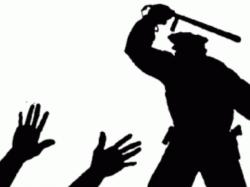 Police Beats Engineering Student At Nadia