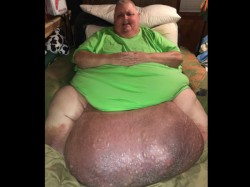 Usa Doctor Removes 130 Pound Tumor From Mississippi Man