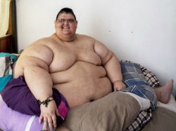 World S Heaviest Man Juan Pedro Franco From Mexico Loses 170 Kg