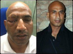 Actor Jeetu Verma Attacked Badly Could Be Blinded Permanently