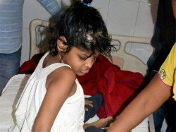 Mowgli Girl May Not Have Been Raised Monkeys Needs Psychological Evaluation Experts