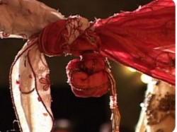 Bride Made Strip After Skin Disease Rumours