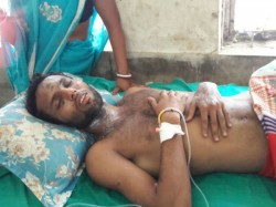 Acid Attack On Young Man Ghatal West Midnapur