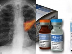 Cuba Found Cancer Vaccine About Five Thousand People Cured