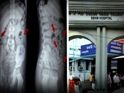 Sskm Doctors Successfully Remove Needles From Brutally Assaulted Child