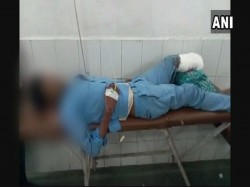Patient S Leg Is Allegedly Used As Pillow Uttar Pradesh S Government Hospital