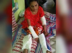 Husband Is Accused Break His Wife S Hands Feet At Bankura