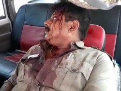 Ratua S Oc Debabrata Chakraborty Got Injured Political Attack At Malda