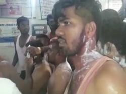 Injured Acid Attack On Congress S Victory Rally Karnataka