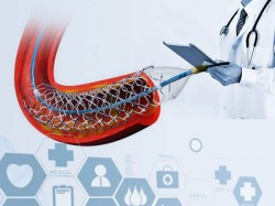 Study Claims Indian Stent Is Equally Good Compare Foreign Stent