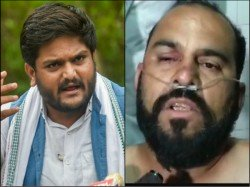 Man Who Slapped Hardik Patel In Srendranagar Rally Admitted In Hospital Being Thrashed