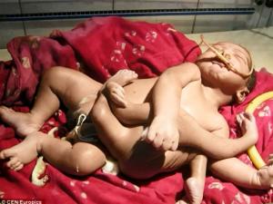 চার হাতা-চার পা নিয়ে জন্ম বালকের, 'দেবশিশু' আখ্যা পরিবারের
